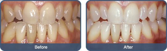 Brusenje zuba forum